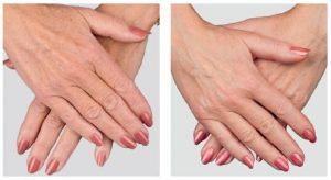 restylane-hands